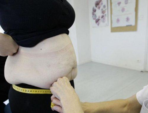 Obesidade. Associações pedem mais formação de médicos e consultas nos centros de saúde