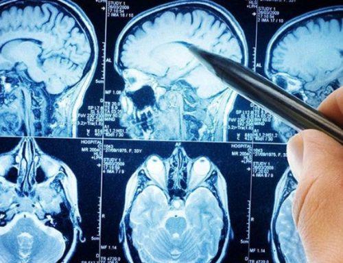 Tumores cerebrais são a principal causa de morte em crianças e jovens com cancro