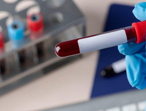 Sangue do cordão umbilical eficaz no tratamento de idosos com leucemia mieloide aguda